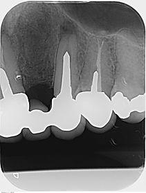 Radiographie préopératoire d'une chirurgie endodontique