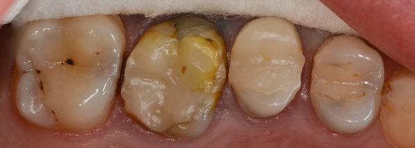 Première molaire supérieure droite dévitalisée avec pansement provisoire