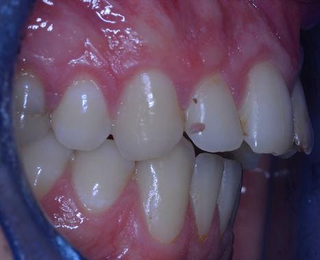 Avant manipulation occlusodontiste.JPG