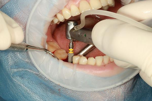dental-3754769_1920.jpg