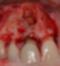 Vue peropératoire d'une chirurgie endodontique