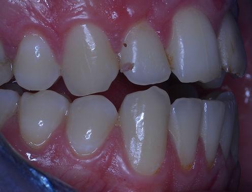 Après manipulation occlusodontiste.JPG