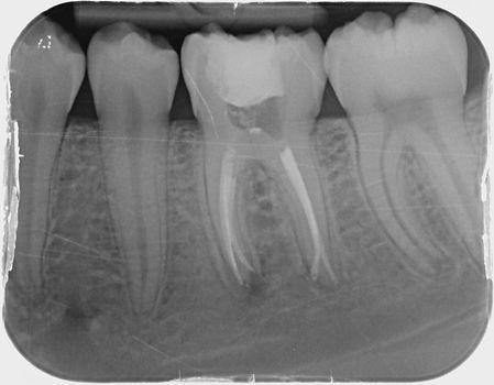 radiographies d'une dent dévitalisée ou d'un traitement endodontique