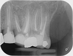 Dents dévitalisées
