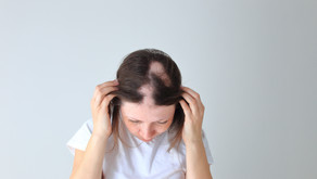 STEROIDRAVI võimalused (alopeetsia & armid)