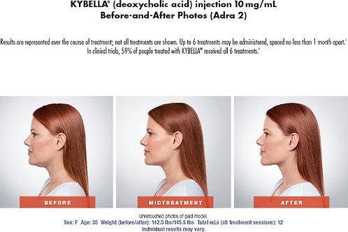 Kybella - 2 vials