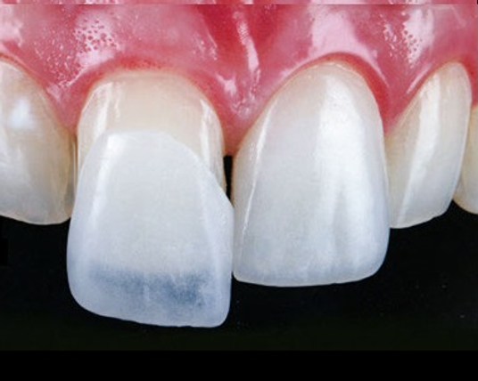Lente de contato dental 1.png