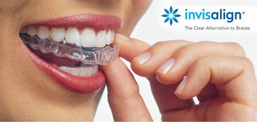 Como funciona o tratamento com o alinhador transparente Invisalign® ?