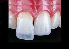 Lente de contato dental.jpg