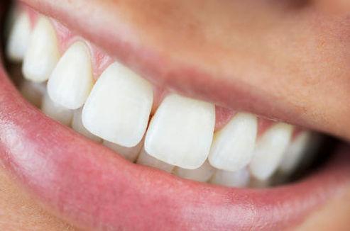 Teeth Restore.jpg