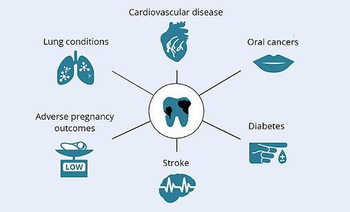 oral-health-and-general-disease.jpeg