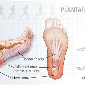 Plantar Fasciitis, that annoying heel pain that wont go away.