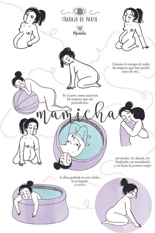 Ilustración digital - Trabajo de parto