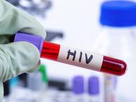 Мигрантам разрешили сдавать анализы на ВИЧ за границей