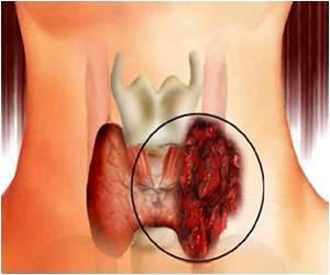 Rak ščitnice