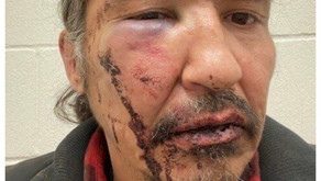 Charges against Chief Allan Adam Withdrawn following  his brutal RCMP arrest