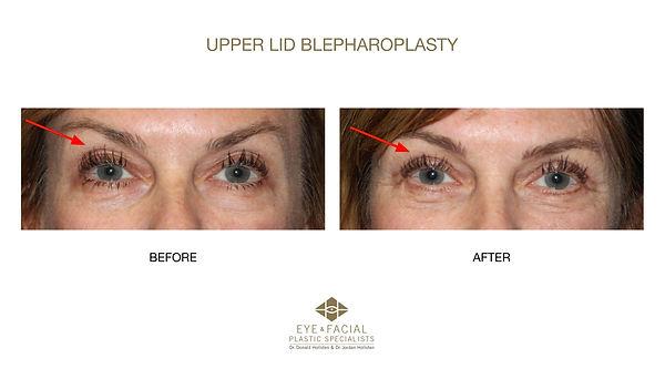 Upper Lid Blepharoplasty - Case 11-1 - J