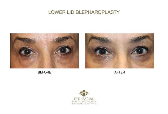 Lower Lid Blepharoplasty - Case  3-1 - J