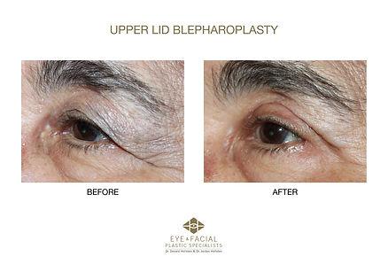 Upper Lid Blepharoplasty - Case 4-1 - DA