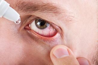 Saúde e bem viver: Conjuntivite oftalmologista explica o que é