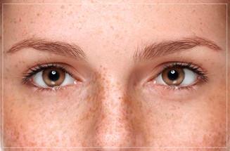 Saúde e bem viver: Qual o tratamento para quem sofre de desvio ocular?
