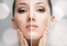 acné-facial-tratamiento.jpg
