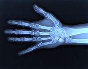 depositphotos_8020503-stock-photo-x-ray-of-hand.jpg