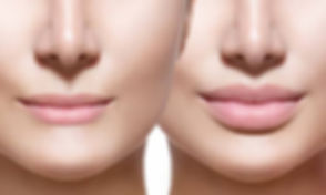 LIP FILLER BEFORE AND AFTER.jpg