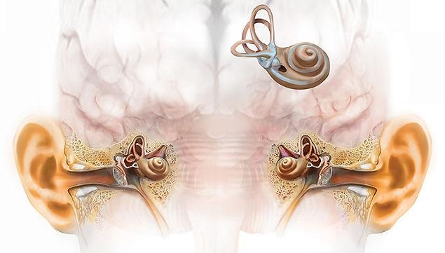 Hearing loss in both ears
