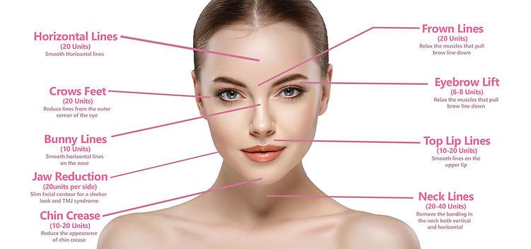 Botox, Xeomin Areas, Renaissance Med Spa
