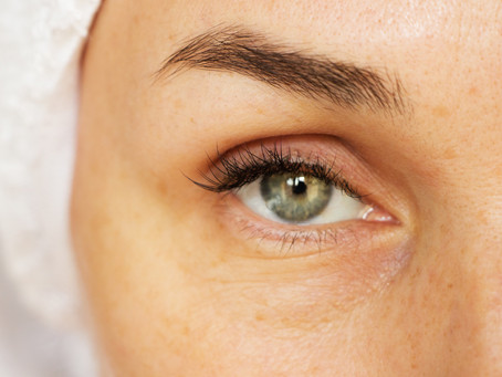 Love the Skin You're In: 9 Beautiful Benefits of Dermal Fillers