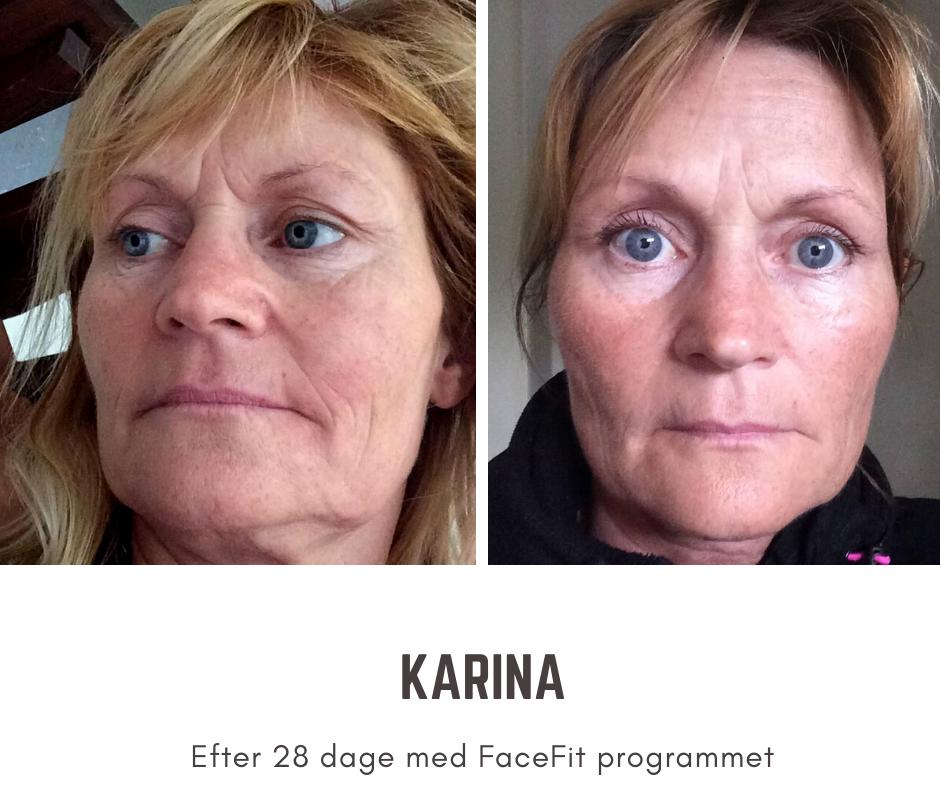 Når du begynder på ansigtsyoga dagligt, vil du allerede kunne se resultater efter fire uger. Du vil opleve en naturlig opstramning af din hud og en synlig reducering af rynker.