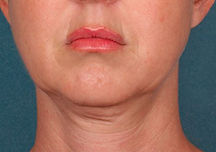 dobbelthage før og efter, bedste råd mod dobbelthge, ansigtsyoga mod dobbelthage