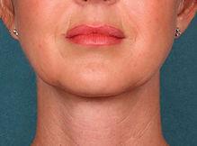 dobbelthage fø og efter, hjælp til dobbelthage, træn dobbelthagen væk, ansigtsyoga og dobbelthage