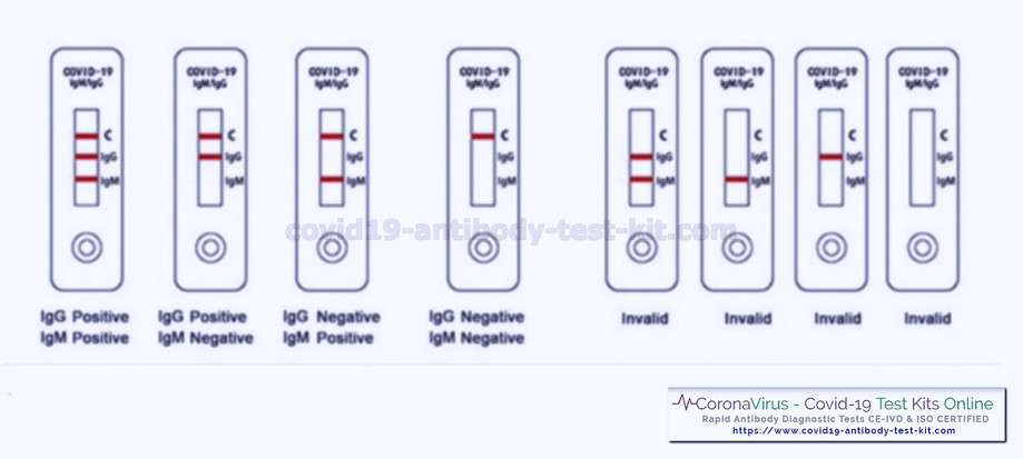 Coronavirus Covid-19 Diagnostics Results