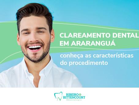Clareamento dental em Araranguá: conheça as características do procedimento