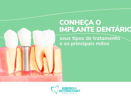 Conheça o implante dentário, seus tipos de tratamento e os principais mitos