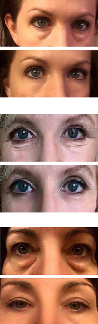 Instantly Ageless resultat