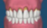 Makati Dentist