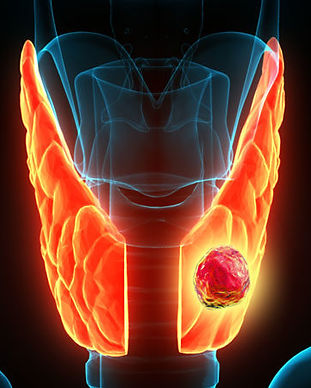 thyroid nodule.jpg