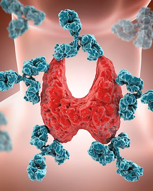 Thyroiditis.jpg