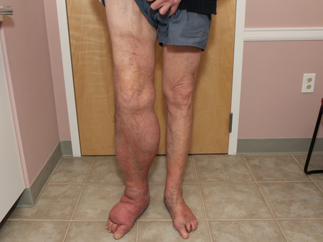Can men be affected with lymphoedema?