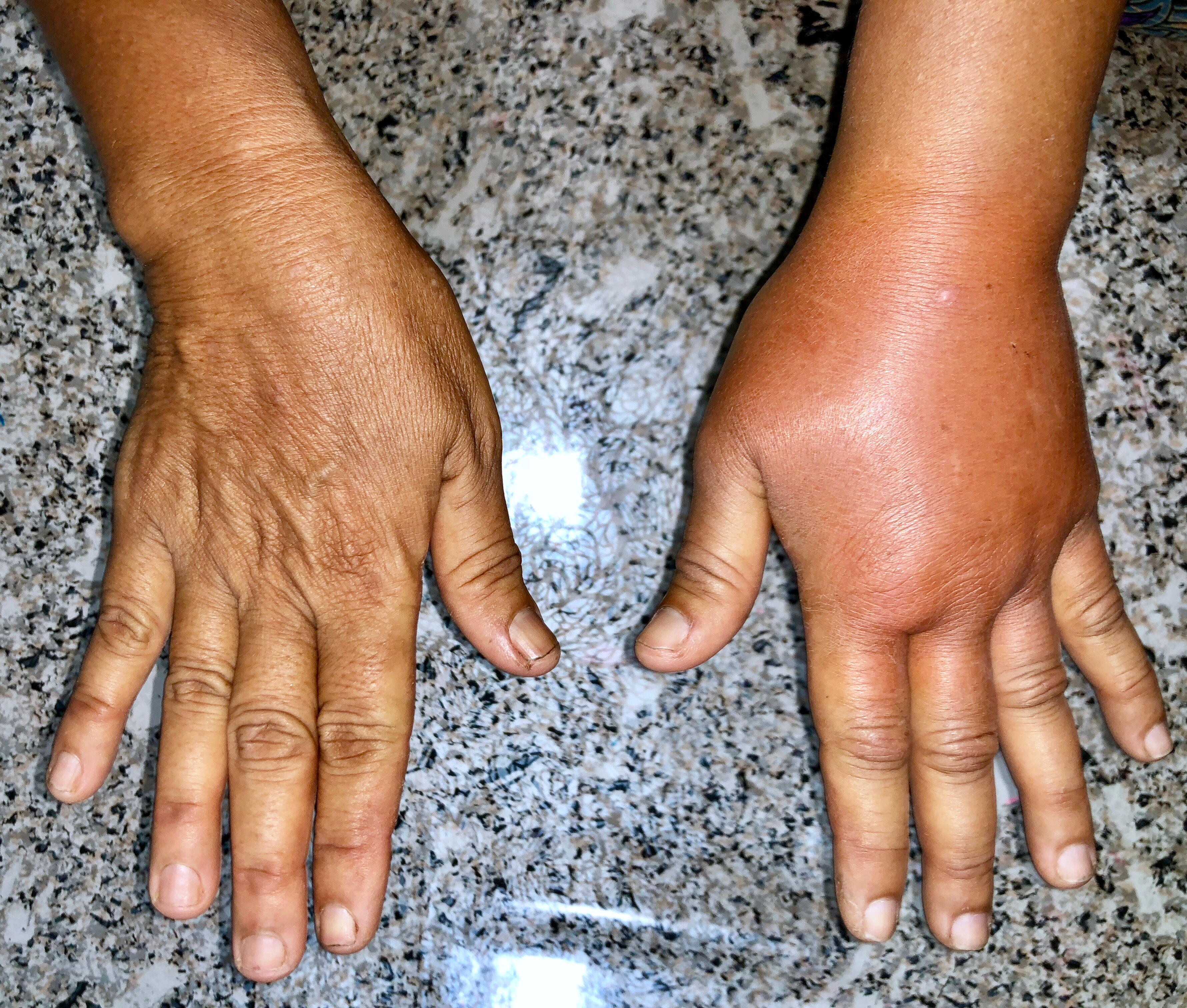 Left hand lymphoedema - a comparison of normal right hand to Left