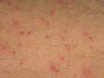 Ehrlichia-rash_IMG_5333.jpg