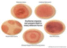 lyme+disease+bullseye+rash.jpg