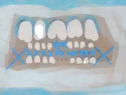 theatre of teeth