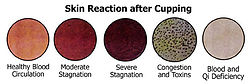 Skin reaction after cupping chart