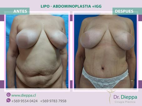 Lipo Abdominoplastia con IGG
