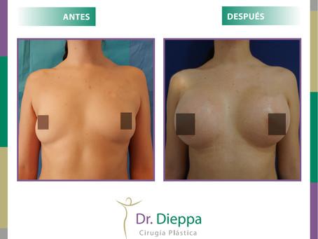 Implante mamario + lipo axilar