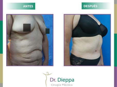 Antes y después de una lipoabdominoplastia